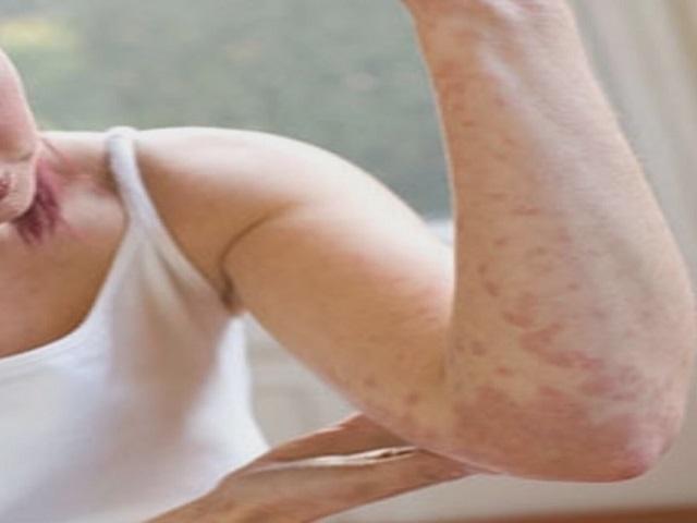 Alerjik egzama neden olur? Nasıl tedavi edilir, Alerjik egzama tedavileri için sayfamızı inceleyin.