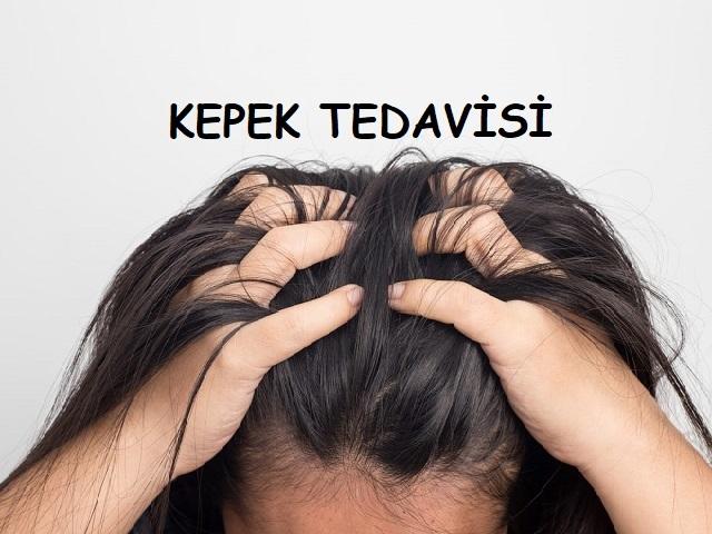 Saç kepeği neden olur? Kepek tedavisi nasıl yapılır? Saç kepeği nasıl geçer? Kepeklenme için doğal çözümler ve ev ilaçları olarak neler kullanılabilir?